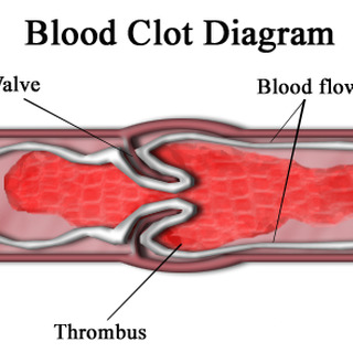 Superficial Thrombophlebitis and other clotting quagmires Artwork