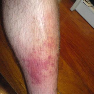 Cellulitis Artwork